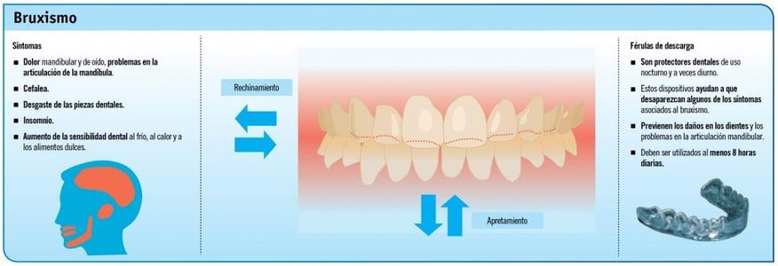 apretar los dientes infografía
