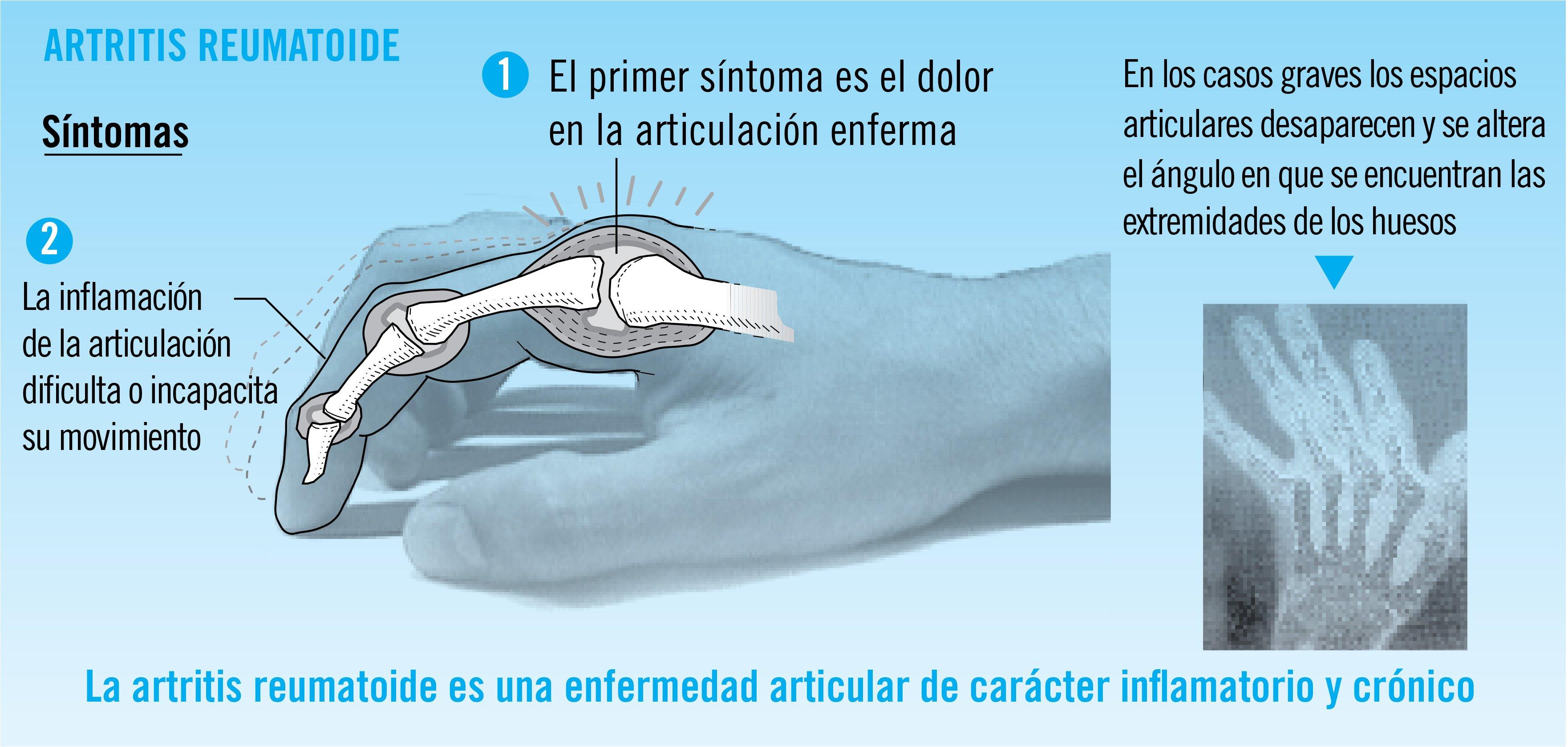 artritis-reumatoide-infografia
