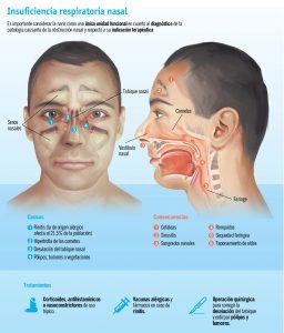 Problemas respiratorios nasales Infografía IMQ