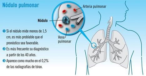 nodulo pulmonar causas y tratamiento
