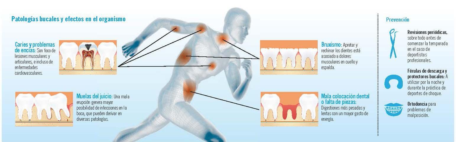 Cómo afecta la salud dental al rendimiento deportivo IMQ Canal Salud