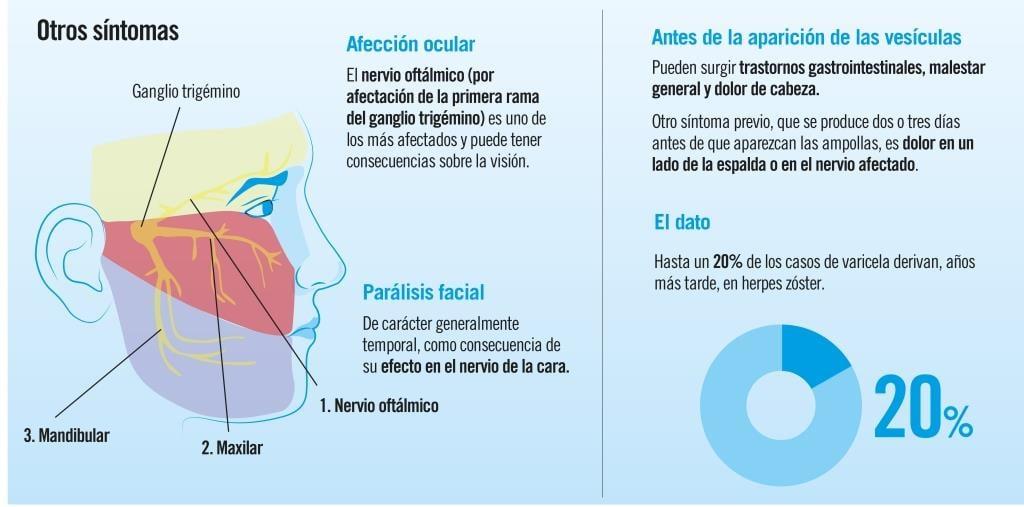 Varicela en adultos: herpes zóster