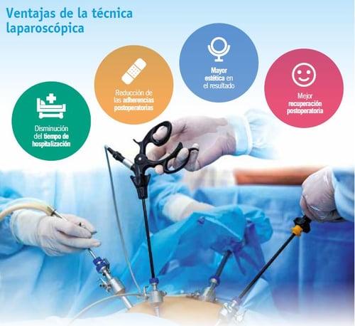 ventajas laparoscopia