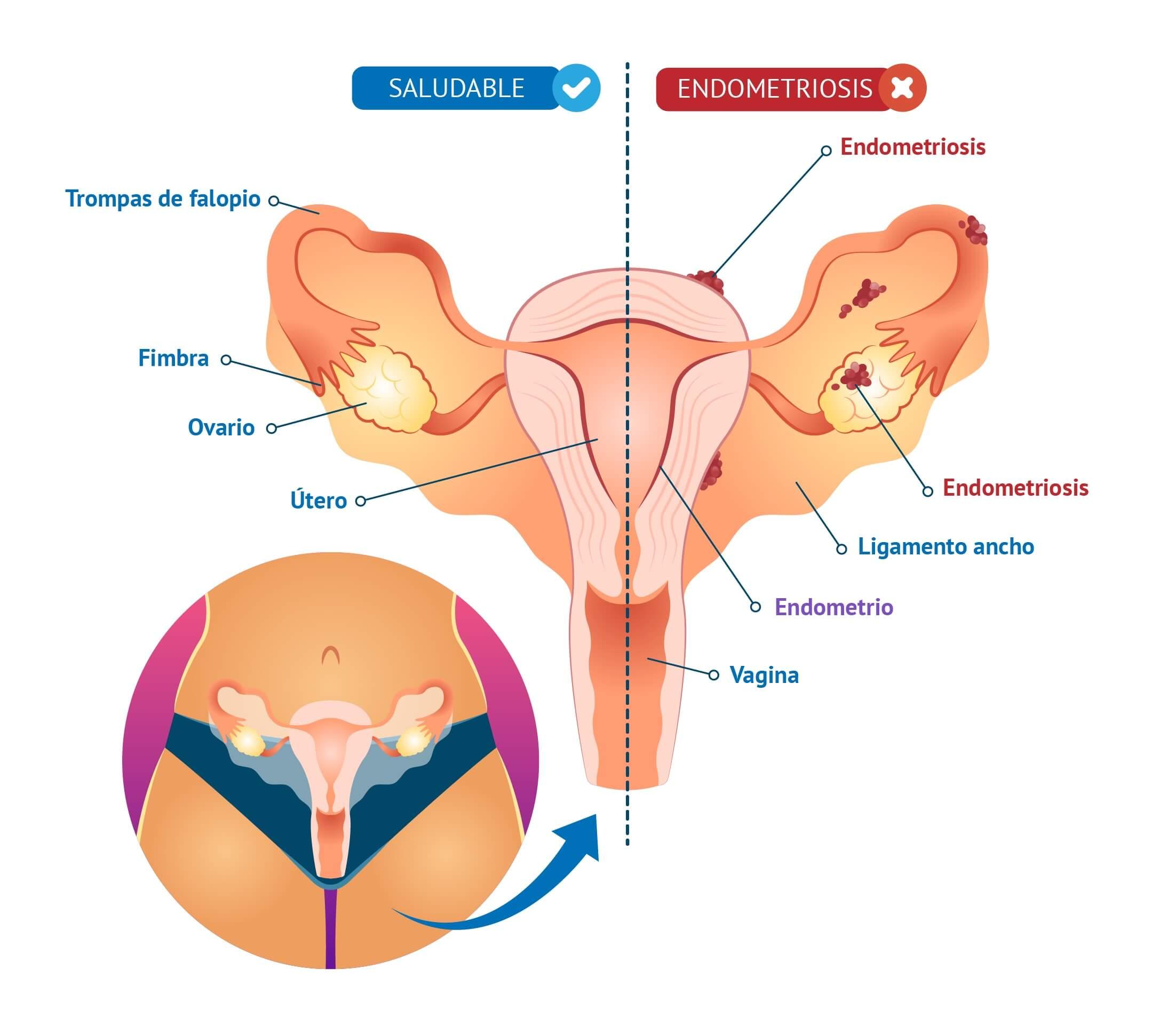 endometriosis-sintomas-tratamiento-diagnostico