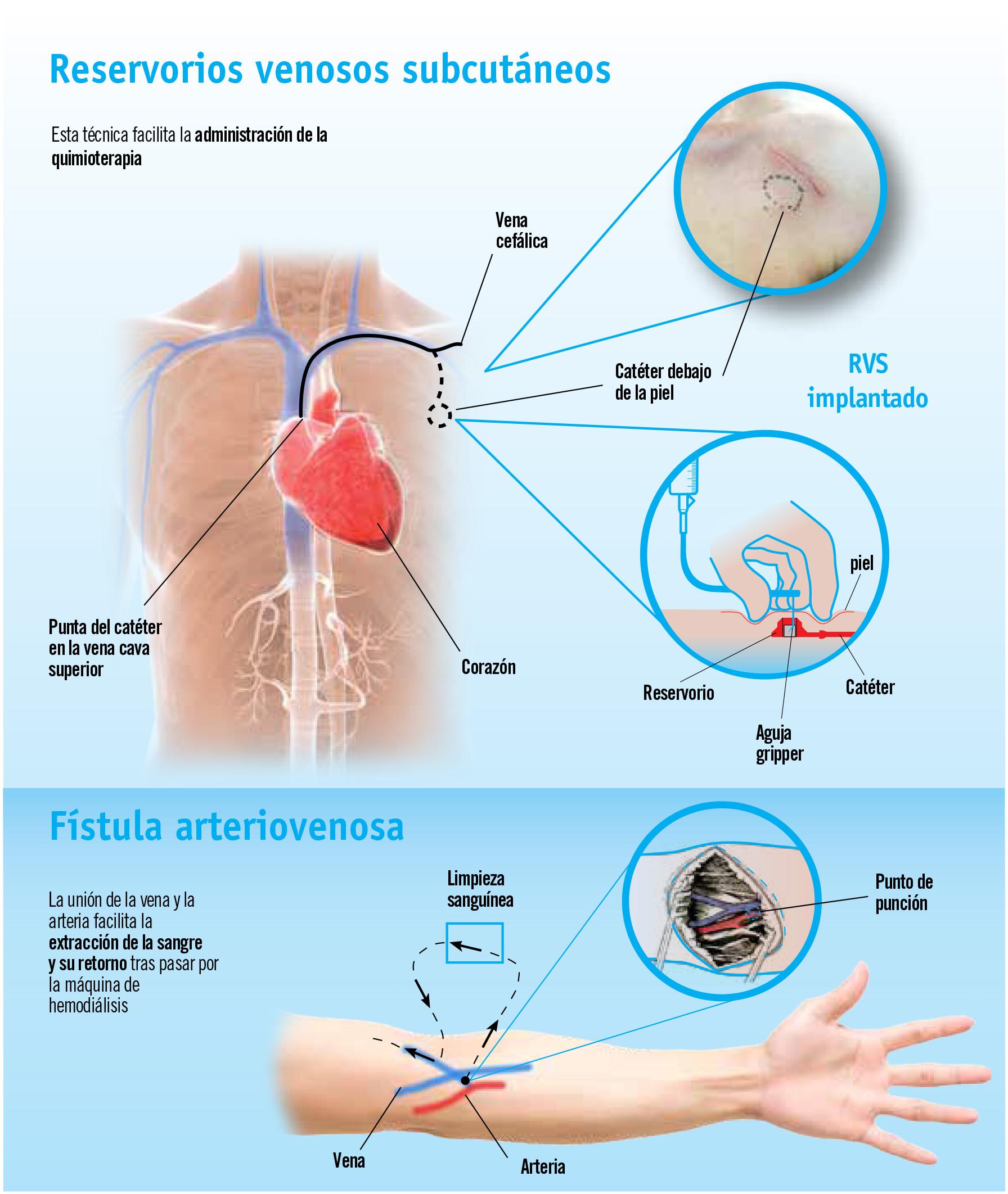 Reservorios venosos subcutáneos, una ayuda para pacientes oncológicos y renales