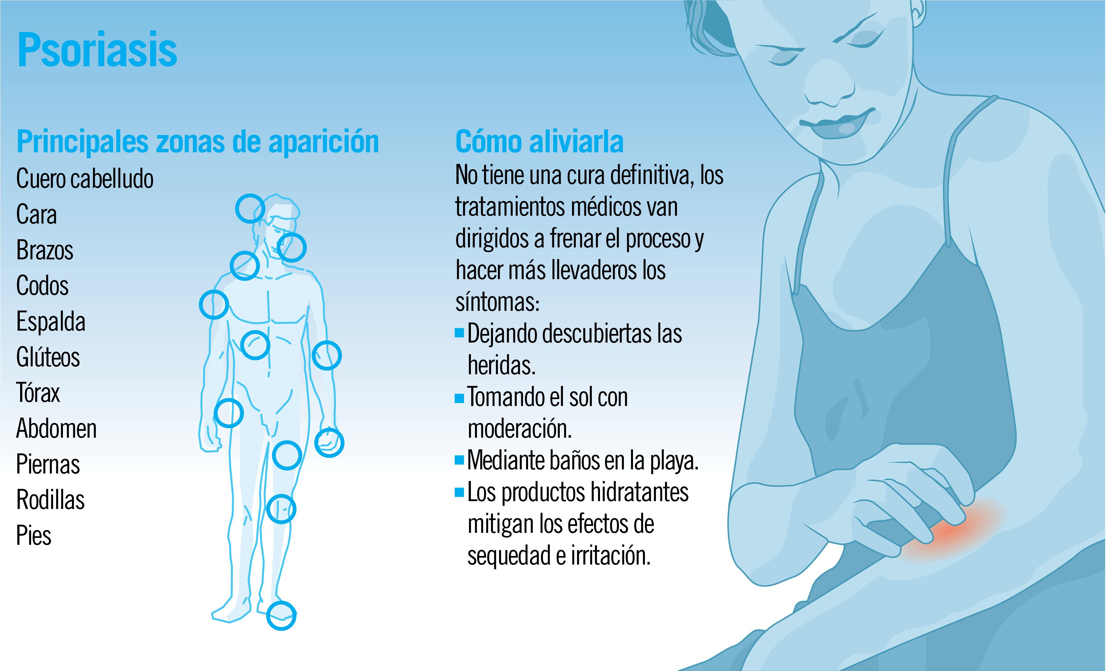 Psoriasis: causas y tratamiento