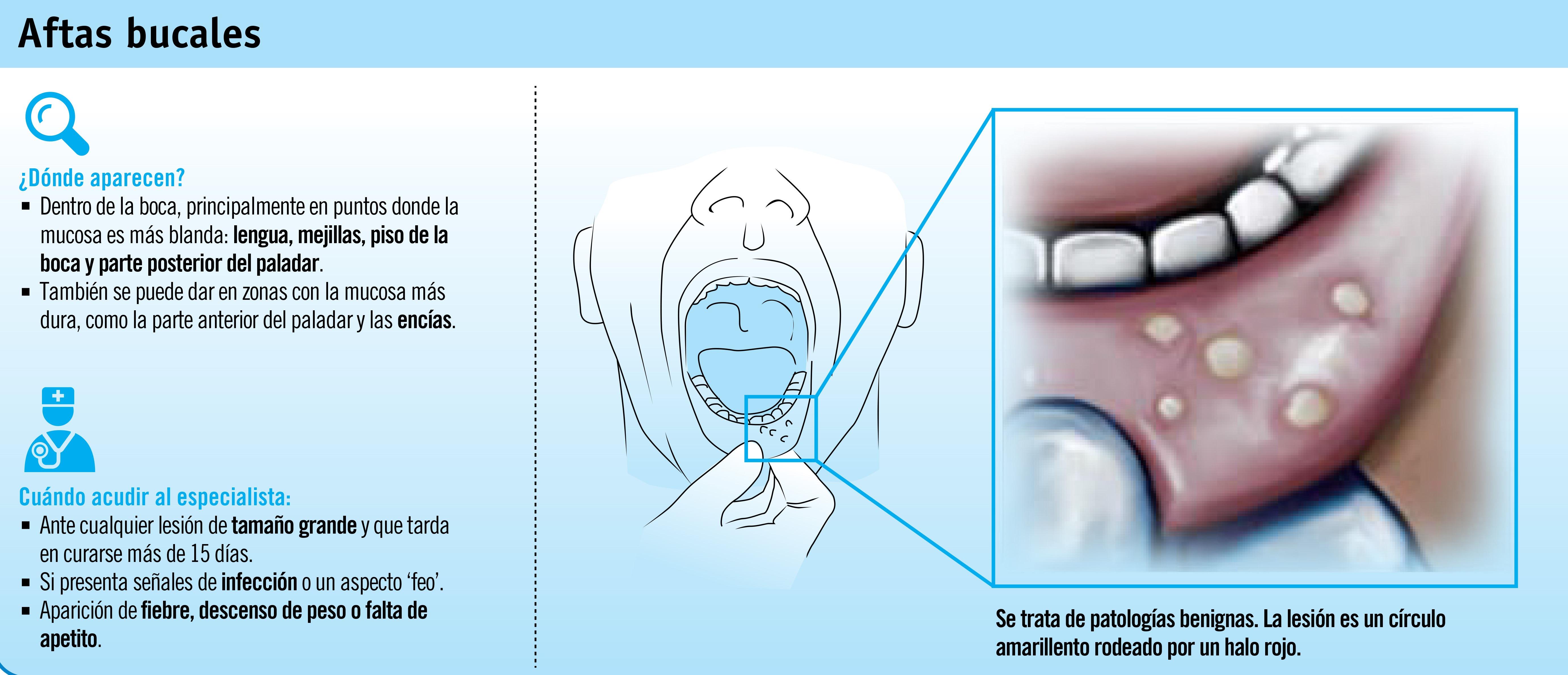 Aftas: las molestas úlceras de la boca
