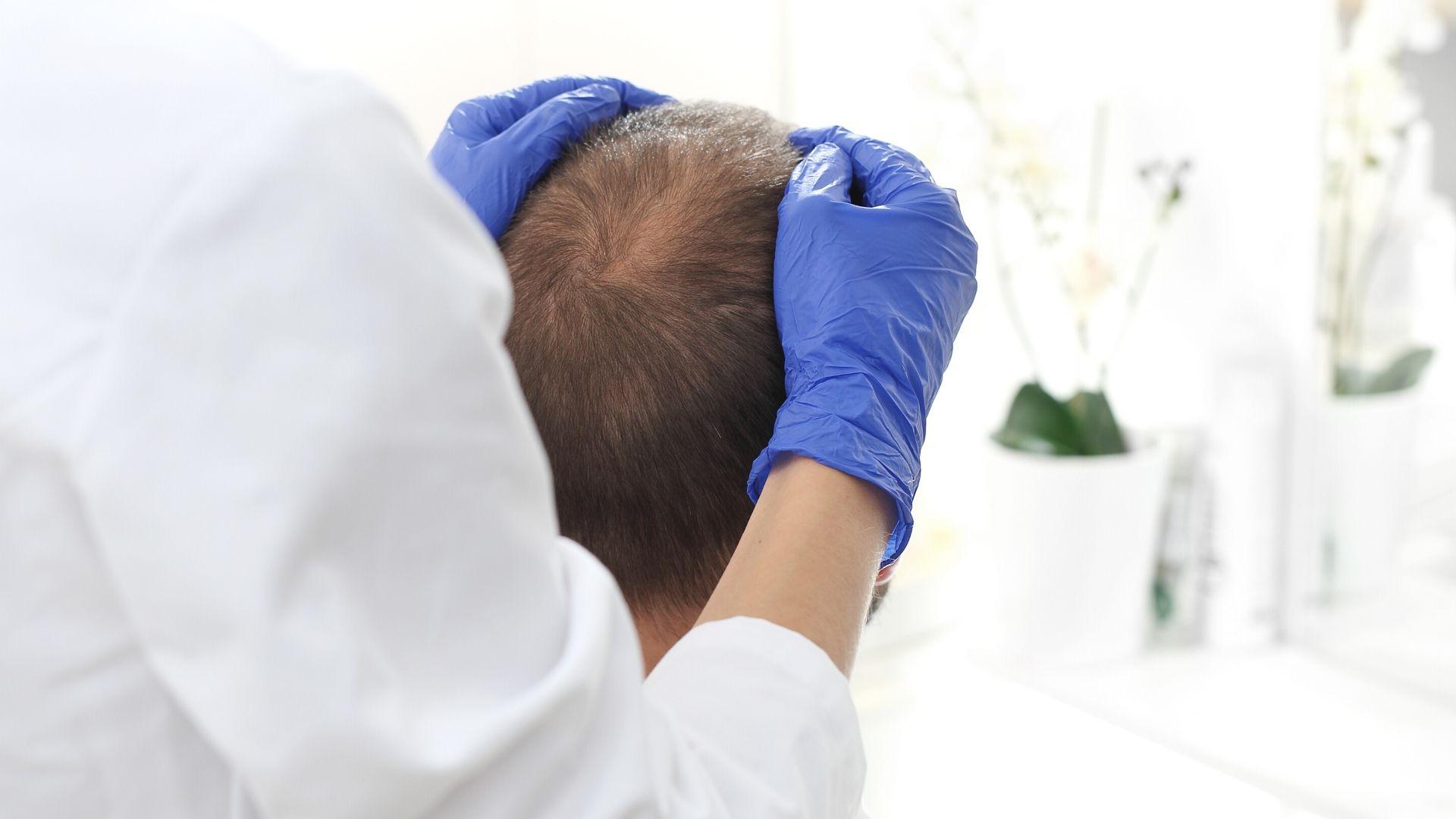 Diagnóstico de la alopecia androgénica masculina