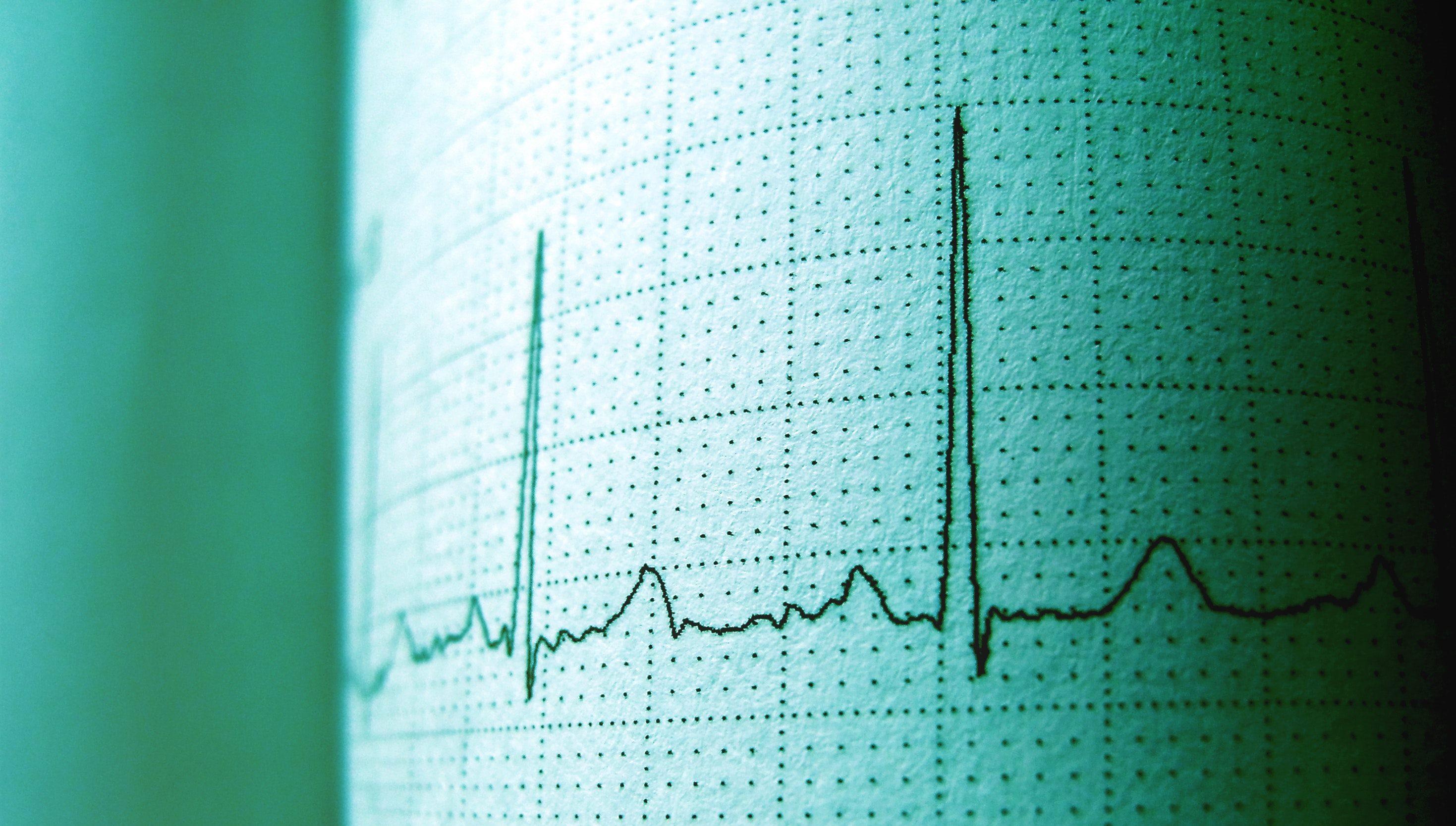 ¿A partir de qué edad hay que hacerse un electrocardiograma?