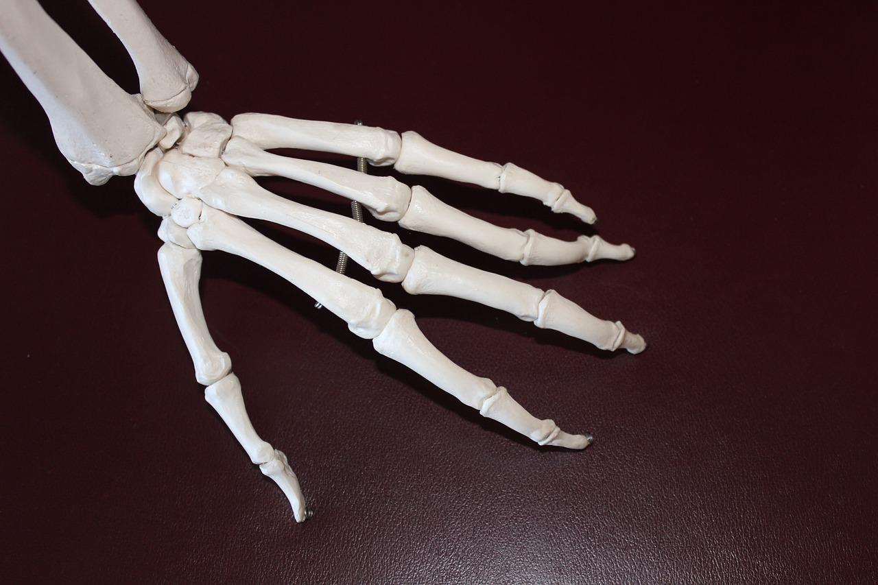 Artritis reumatoide: qué es y cuáles son sus síntomas