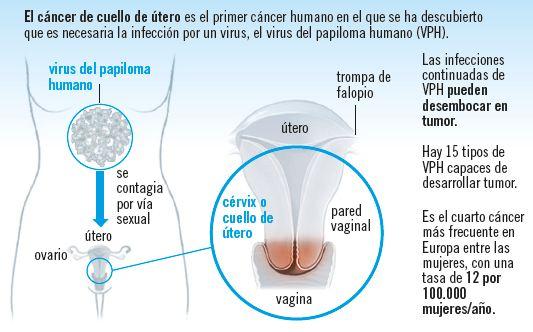 Cáncer de cuello de útero: la clave está en la prevención