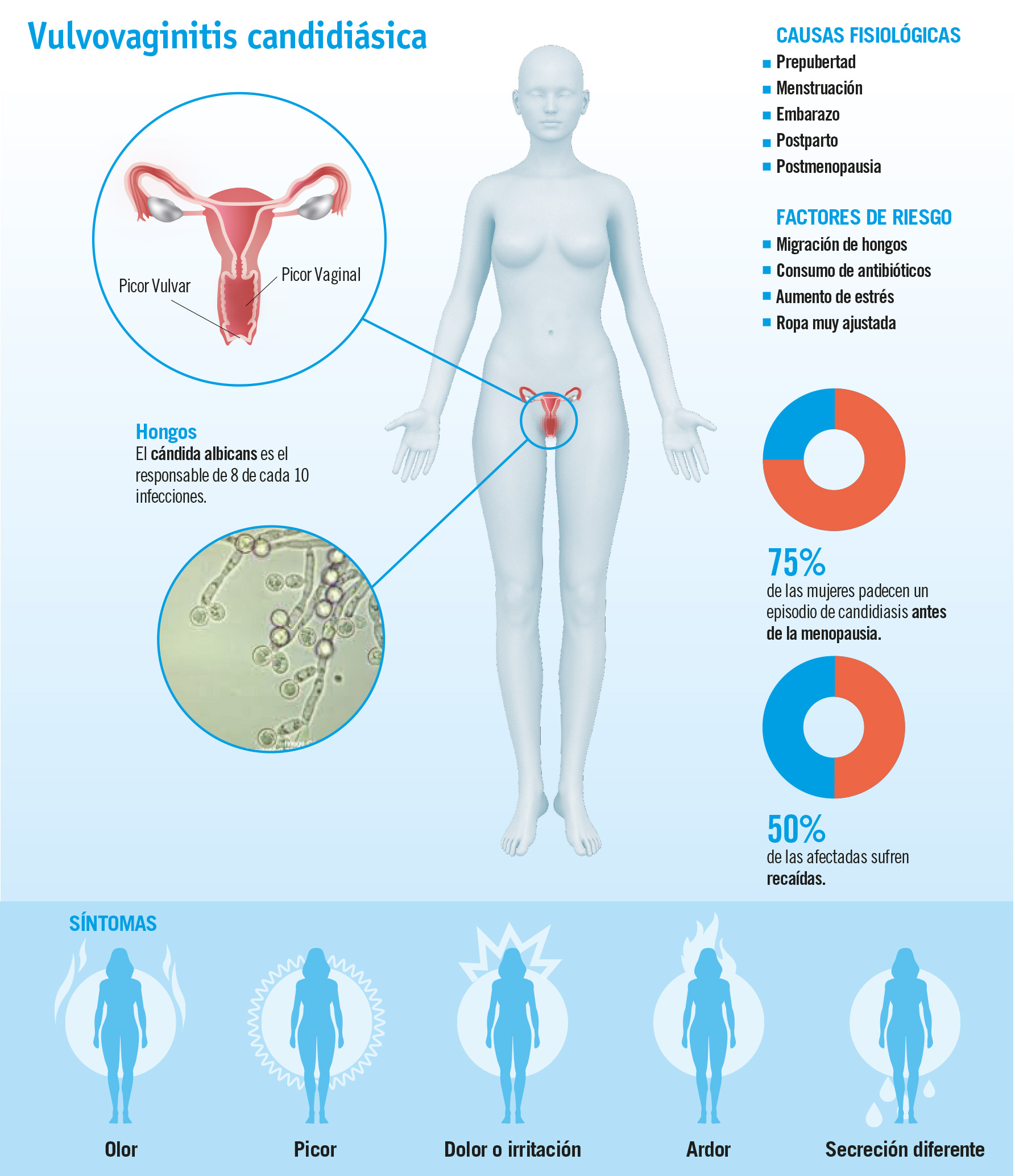 Candidiasis: una infección vaginal cada vez más frecuente