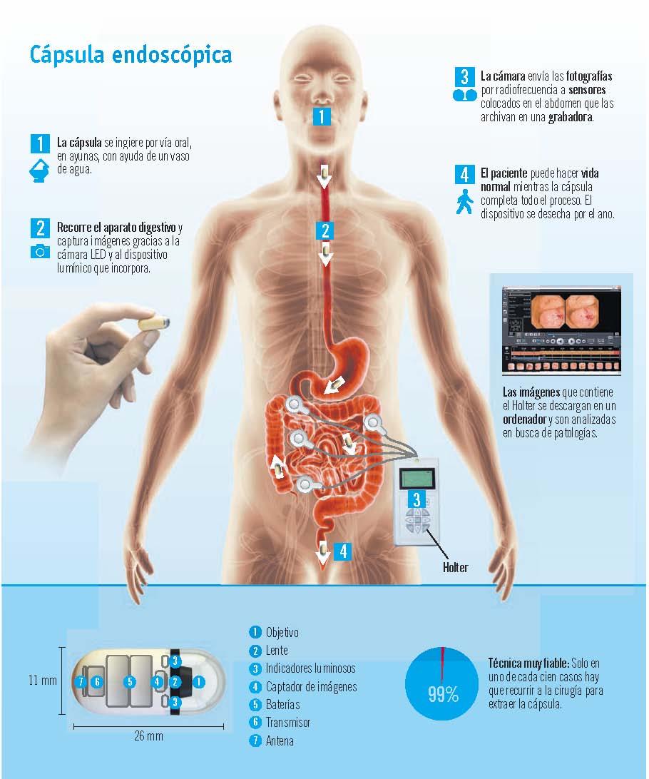 Cápsula endoscópica: innovación en el diagnóstico por imagen