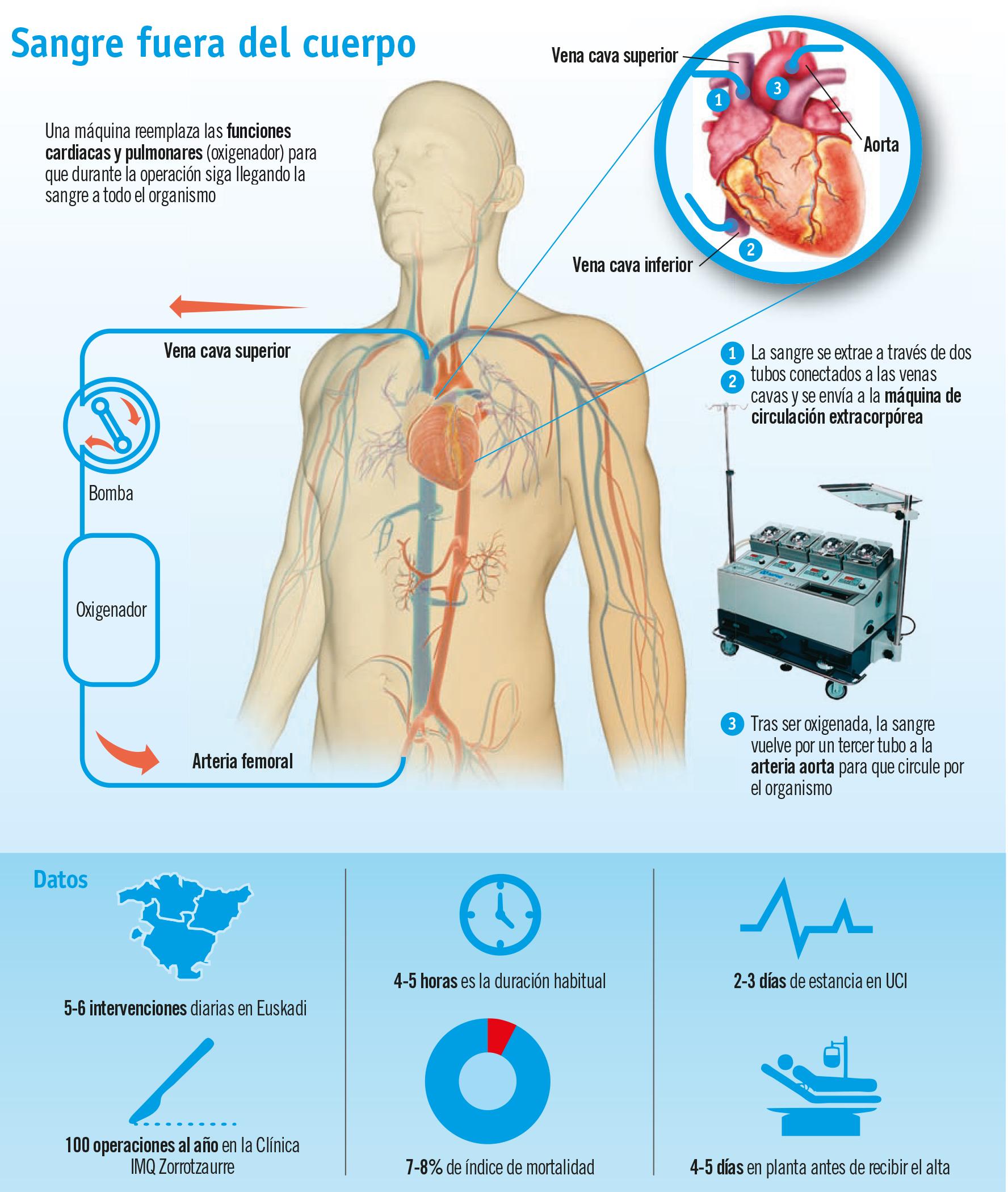 Circulación extracorpórea, corazón artificial prestado