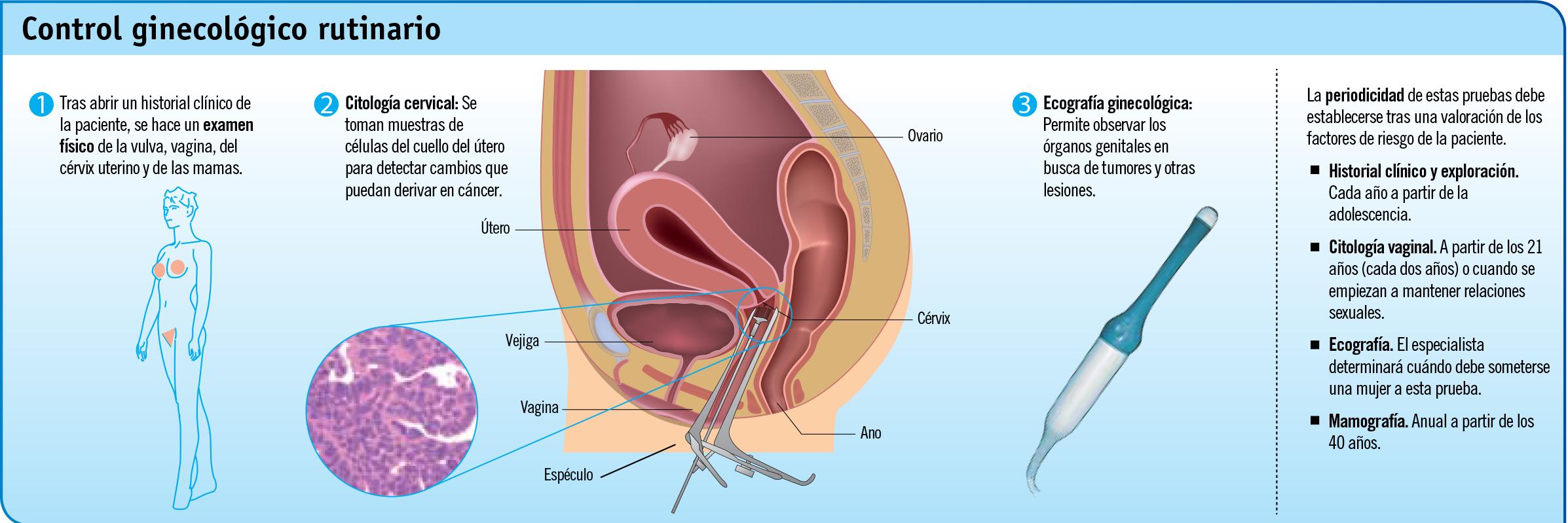 El control ginecológico a examen