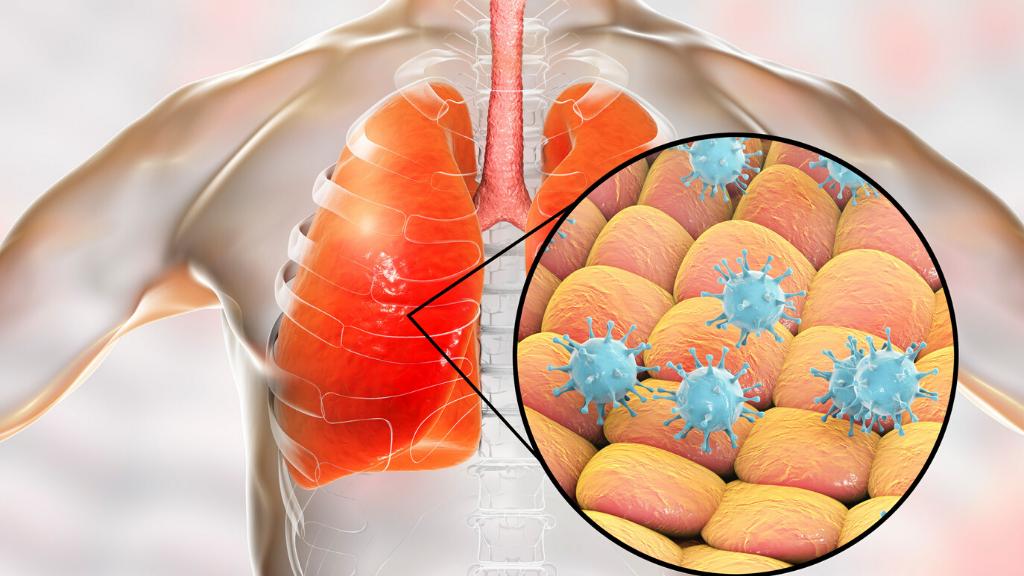 Coronavirus: síntomas y medidas de prevención