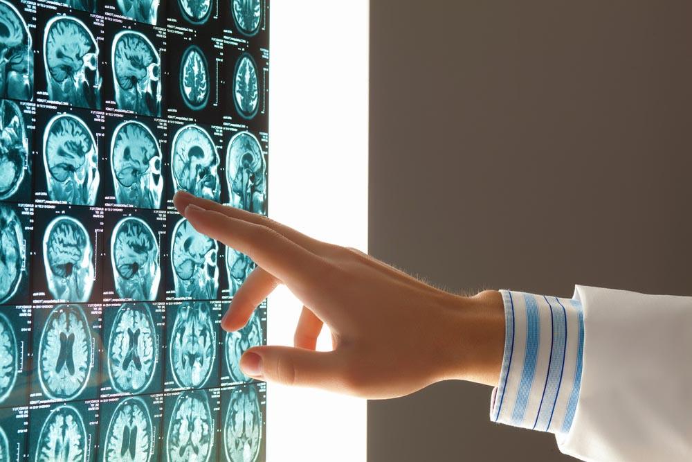 Crisis epilépticas: aprender a convivir con ellas