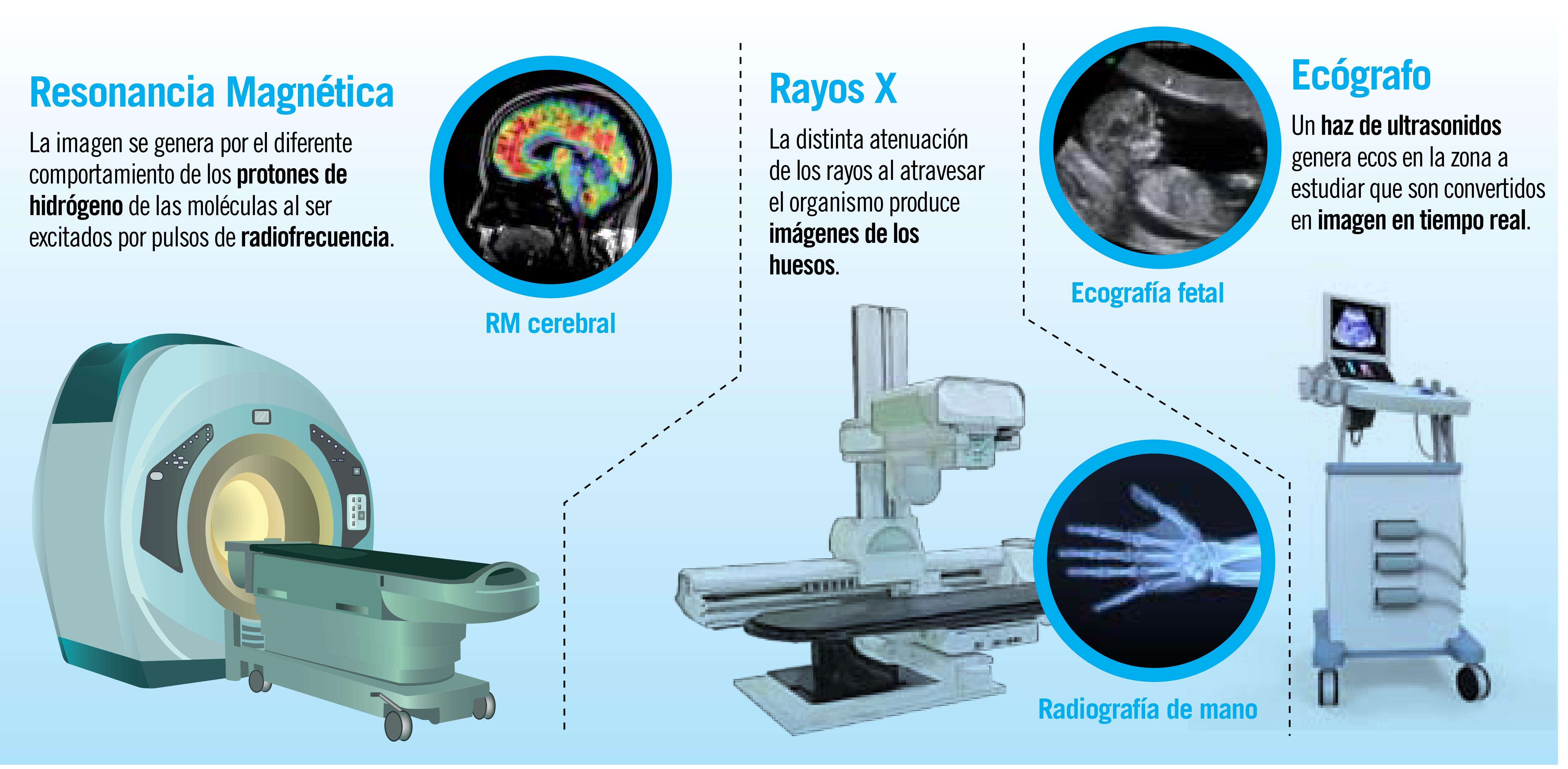 Diagnóstico por imagen: órganos a la vista