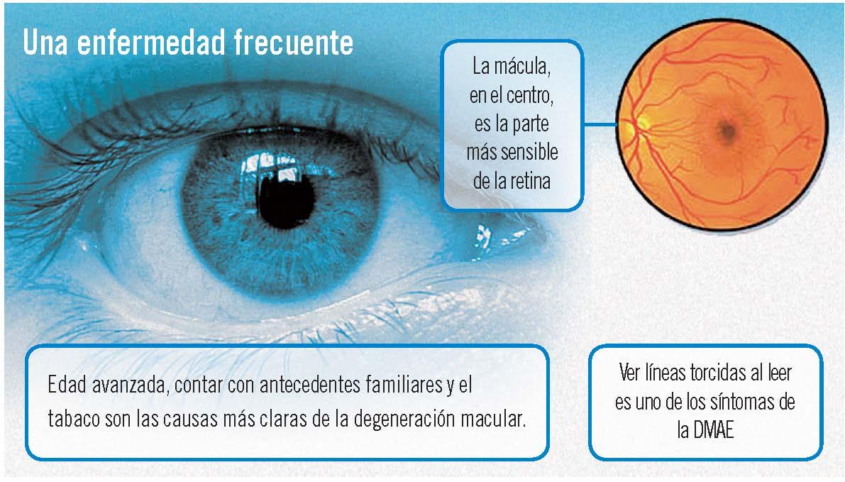 Degeneración macular: prevención a la vista