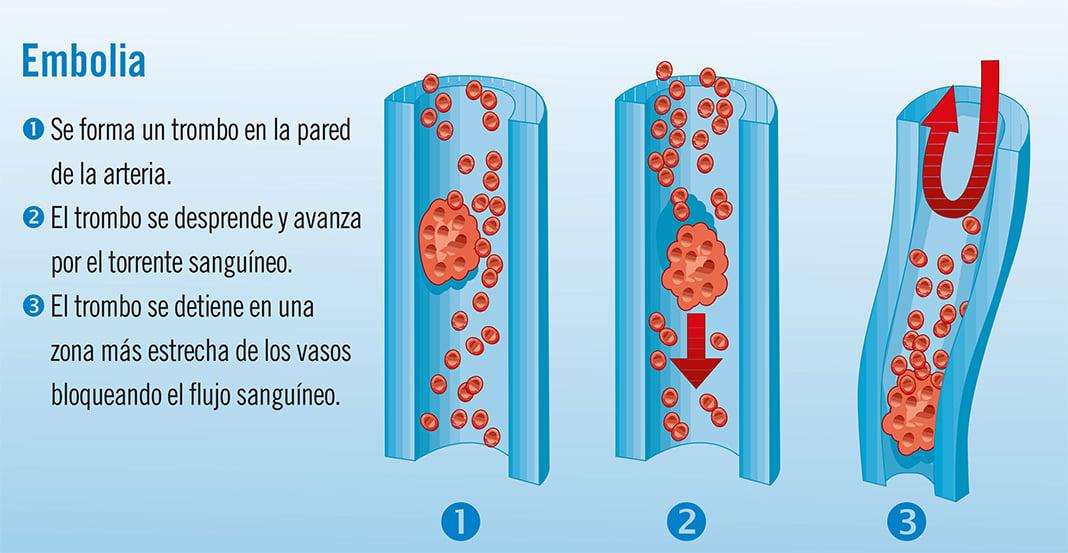 Embolia: síntomas y tratamiento