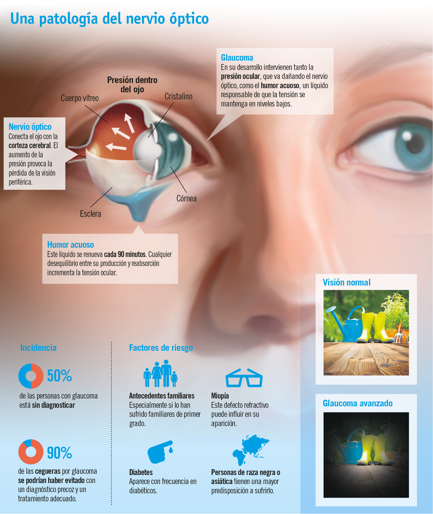 Glaucoma, cómo prevenir la 'ceguera silenciosa'