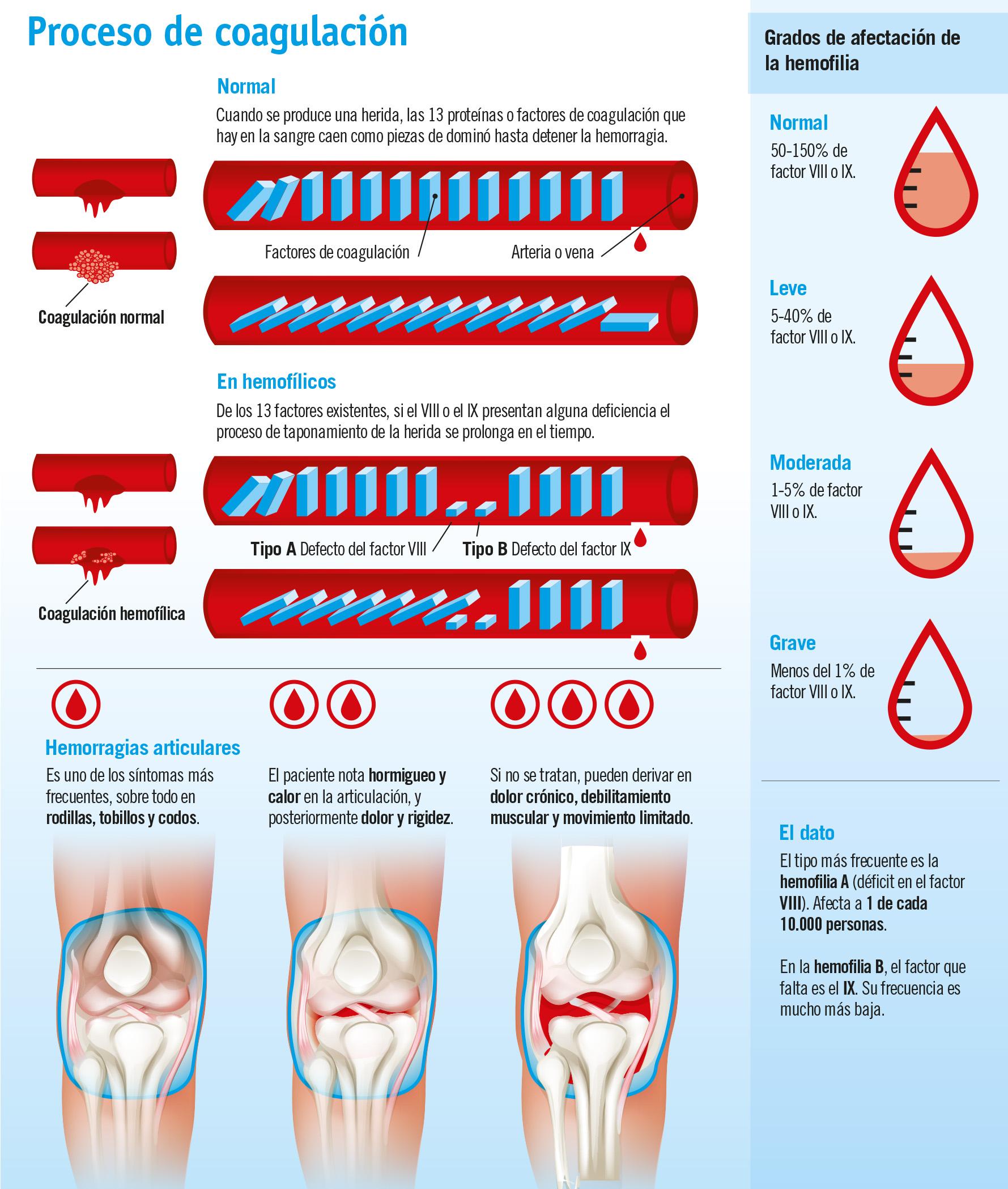 Síntomas y causas de la hemofilia