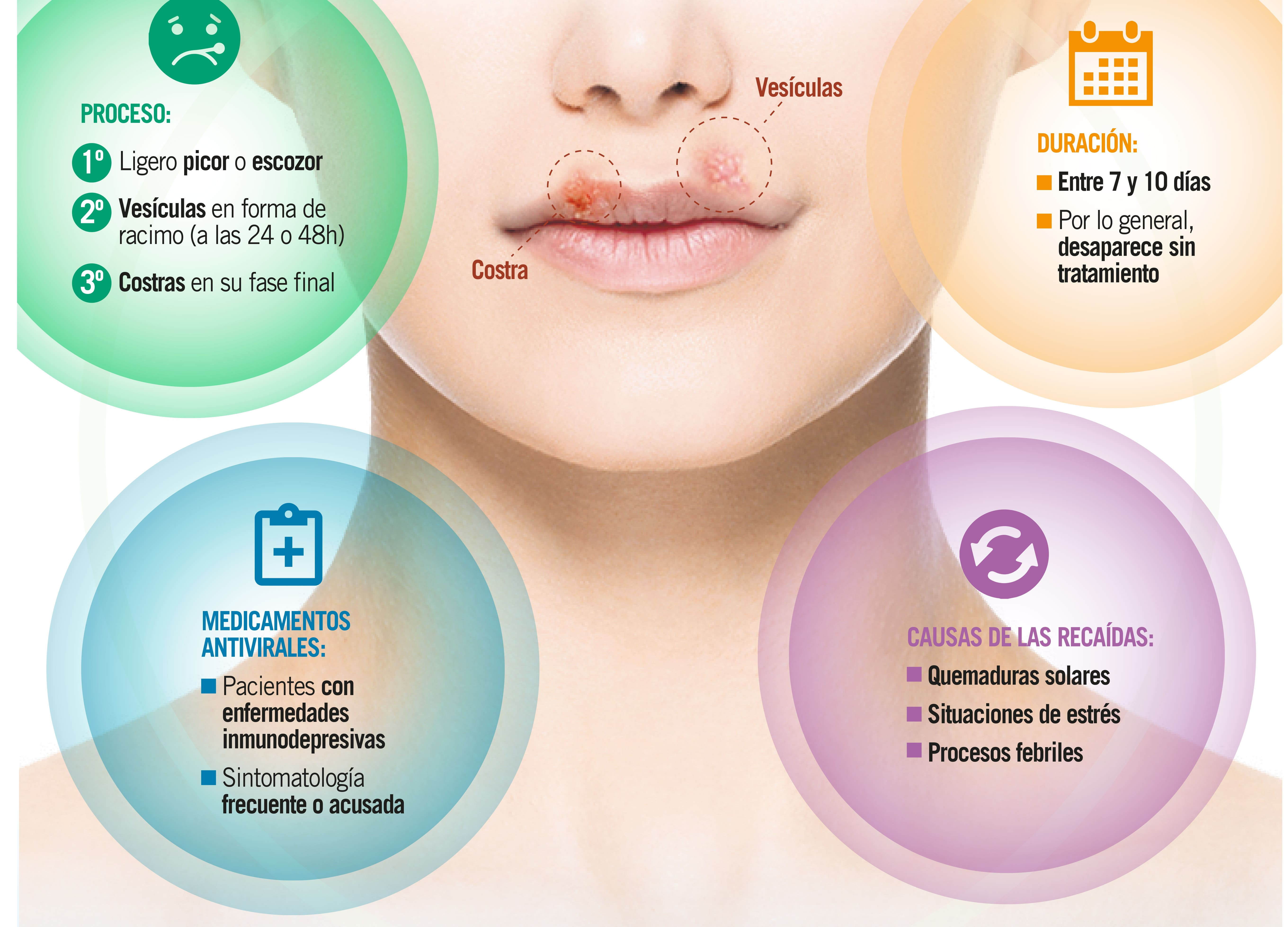 Herpes labial, una infección leve pero molesta