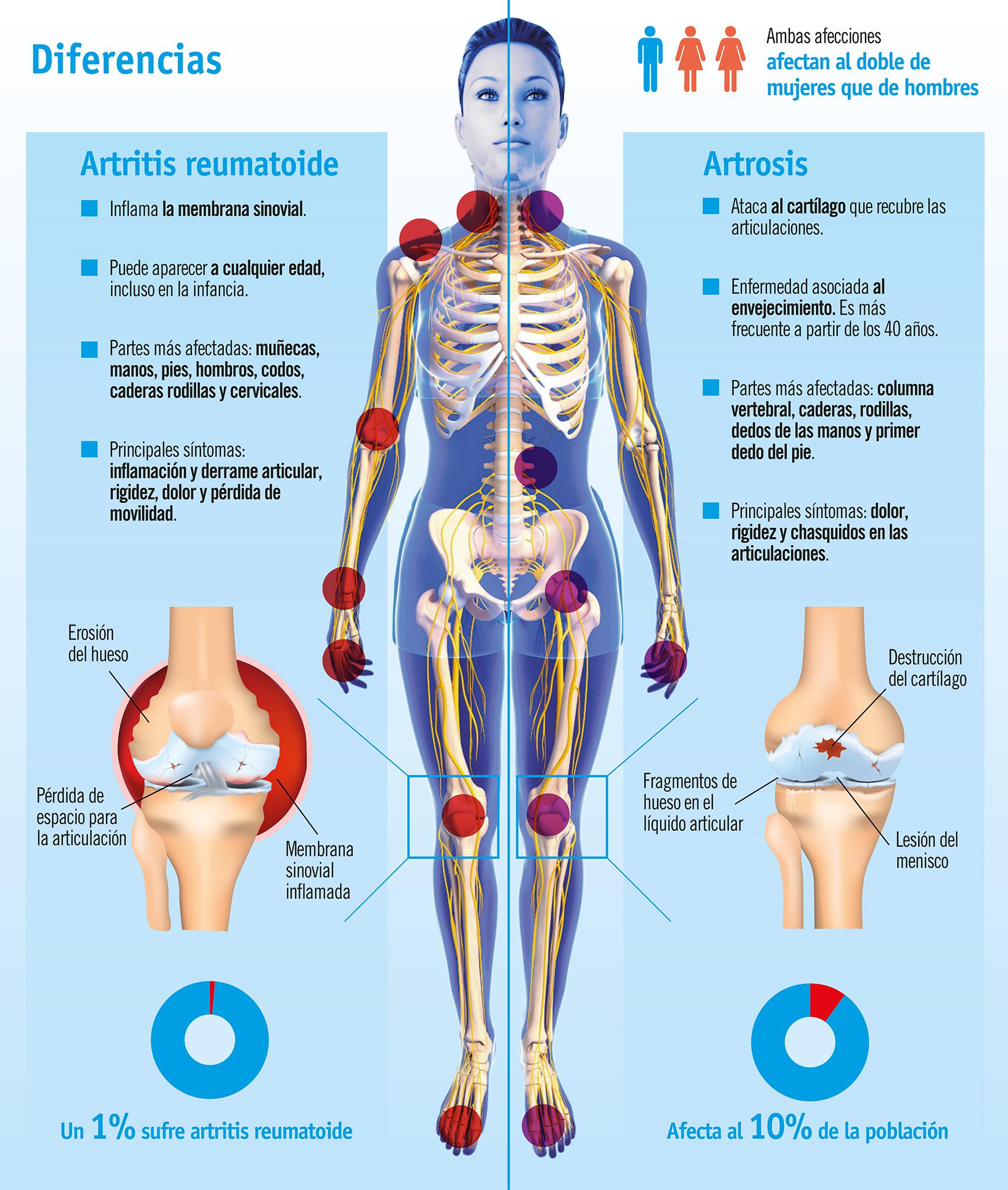 Artrosis y artritis, dolor en las articulaciones