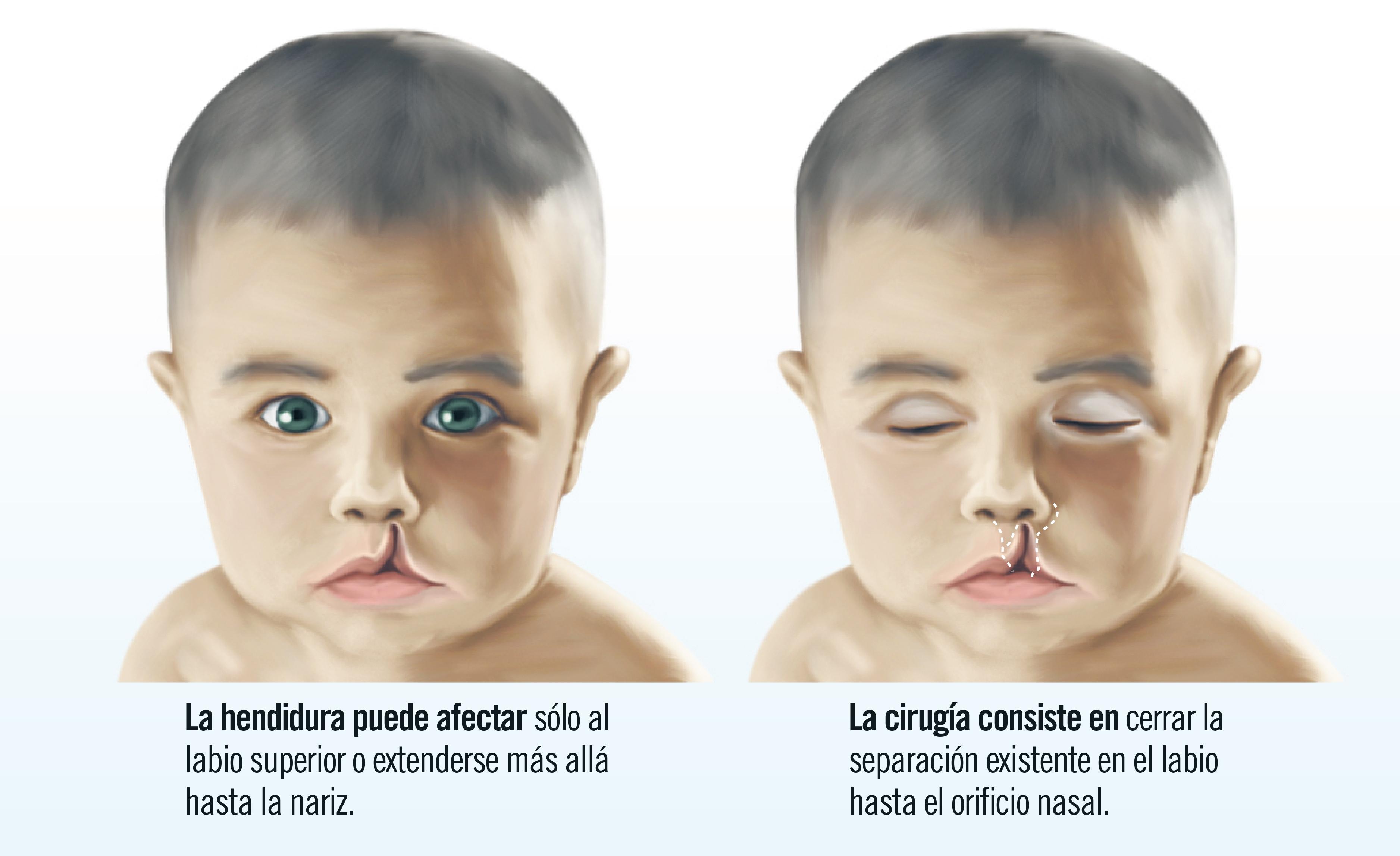 Causas y tratamiento del labio hendido