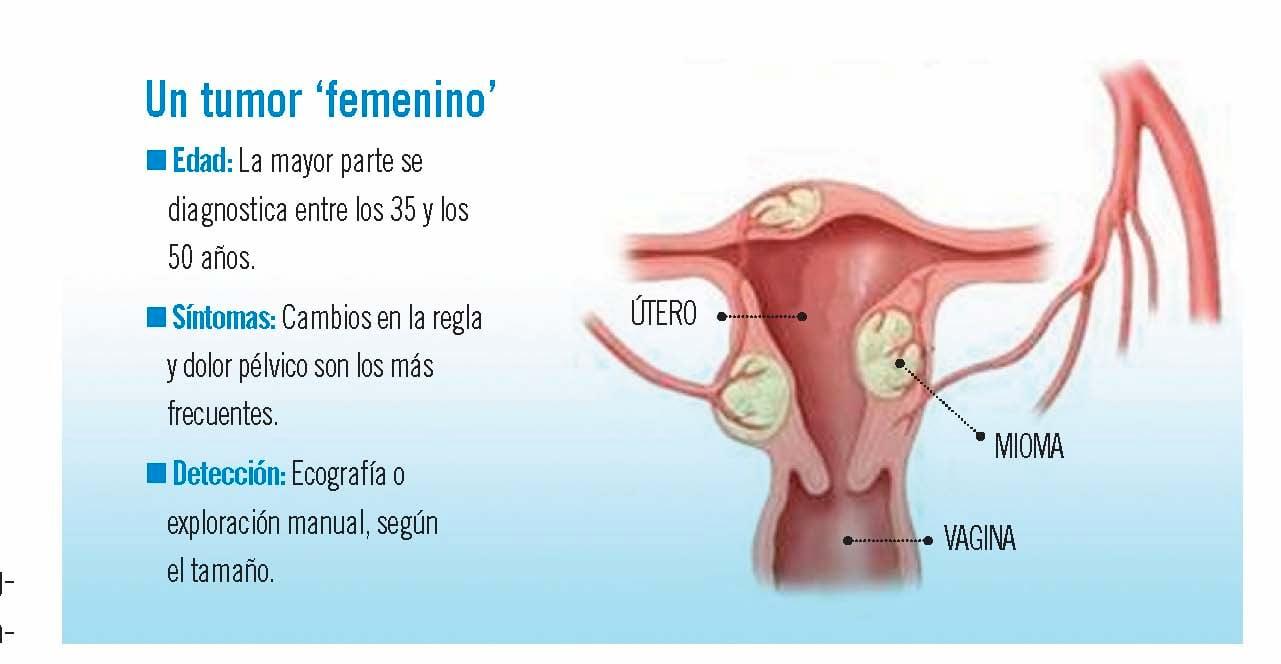 Miomas uterinos, frecuentes y benignos
