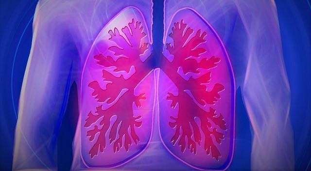Nódulo pulmonar: causas y tratamiento