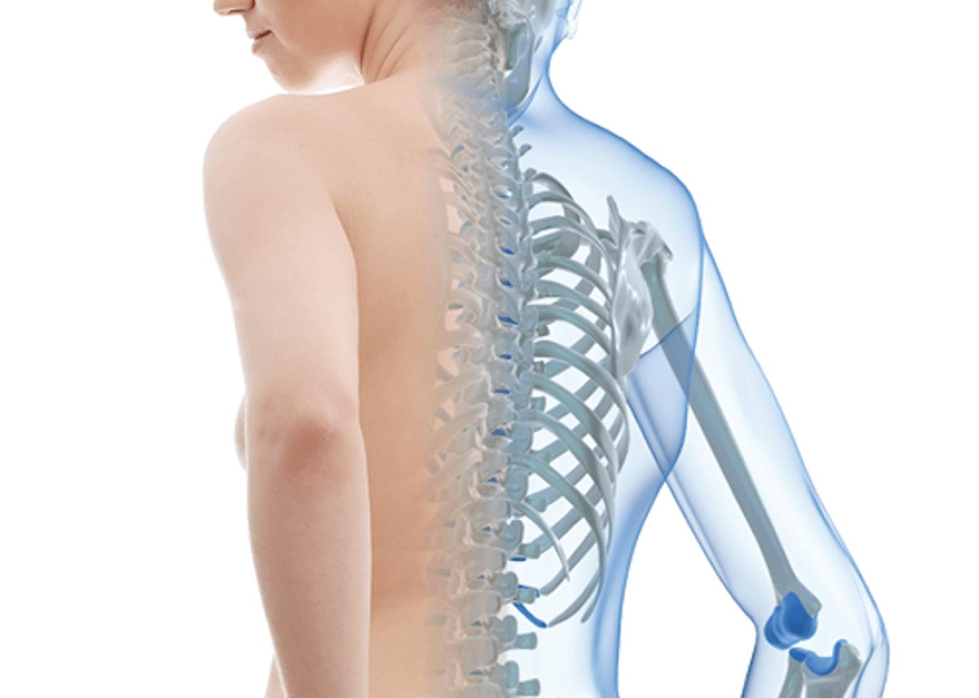 Osteoporosis, prevenir antes que curar