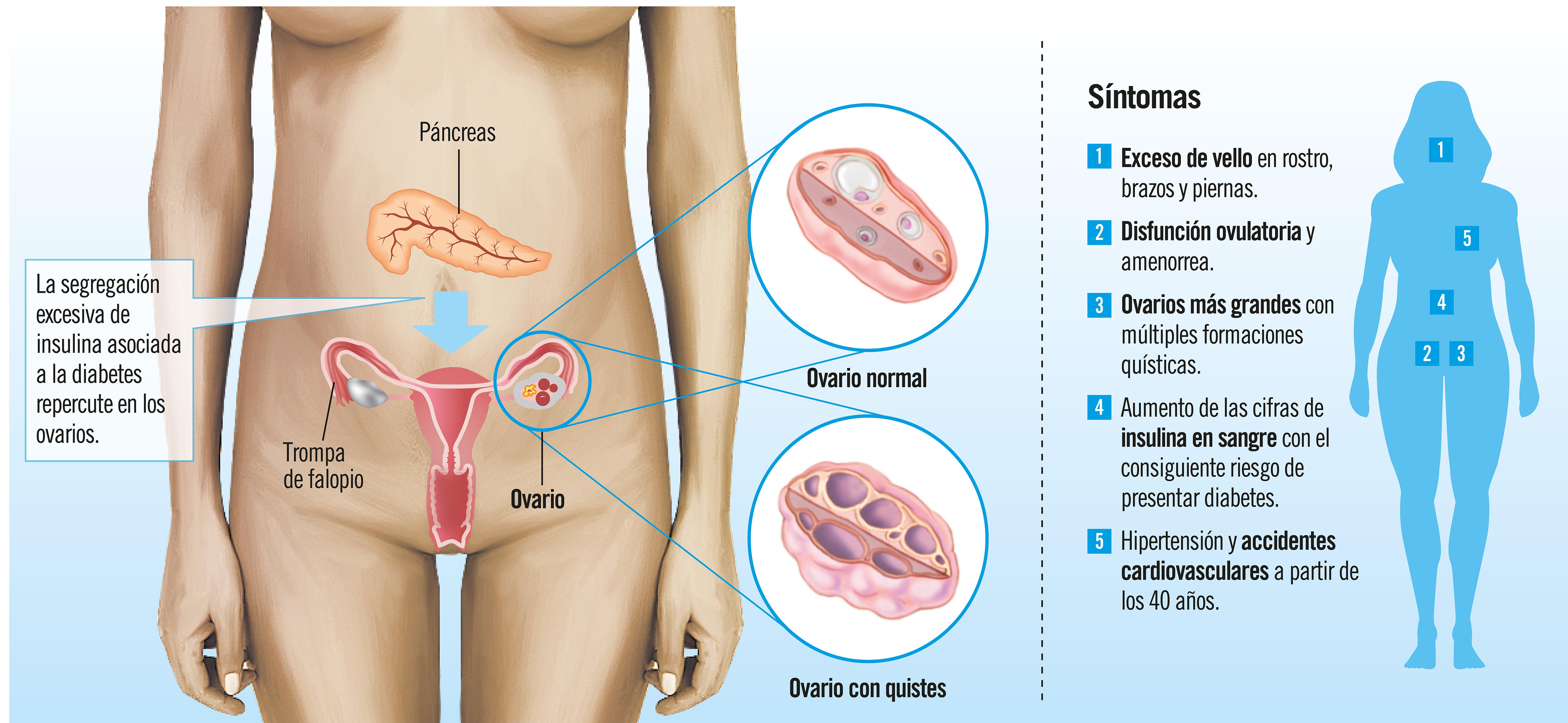 Ovario poliquístico: síntomas y tratamiento