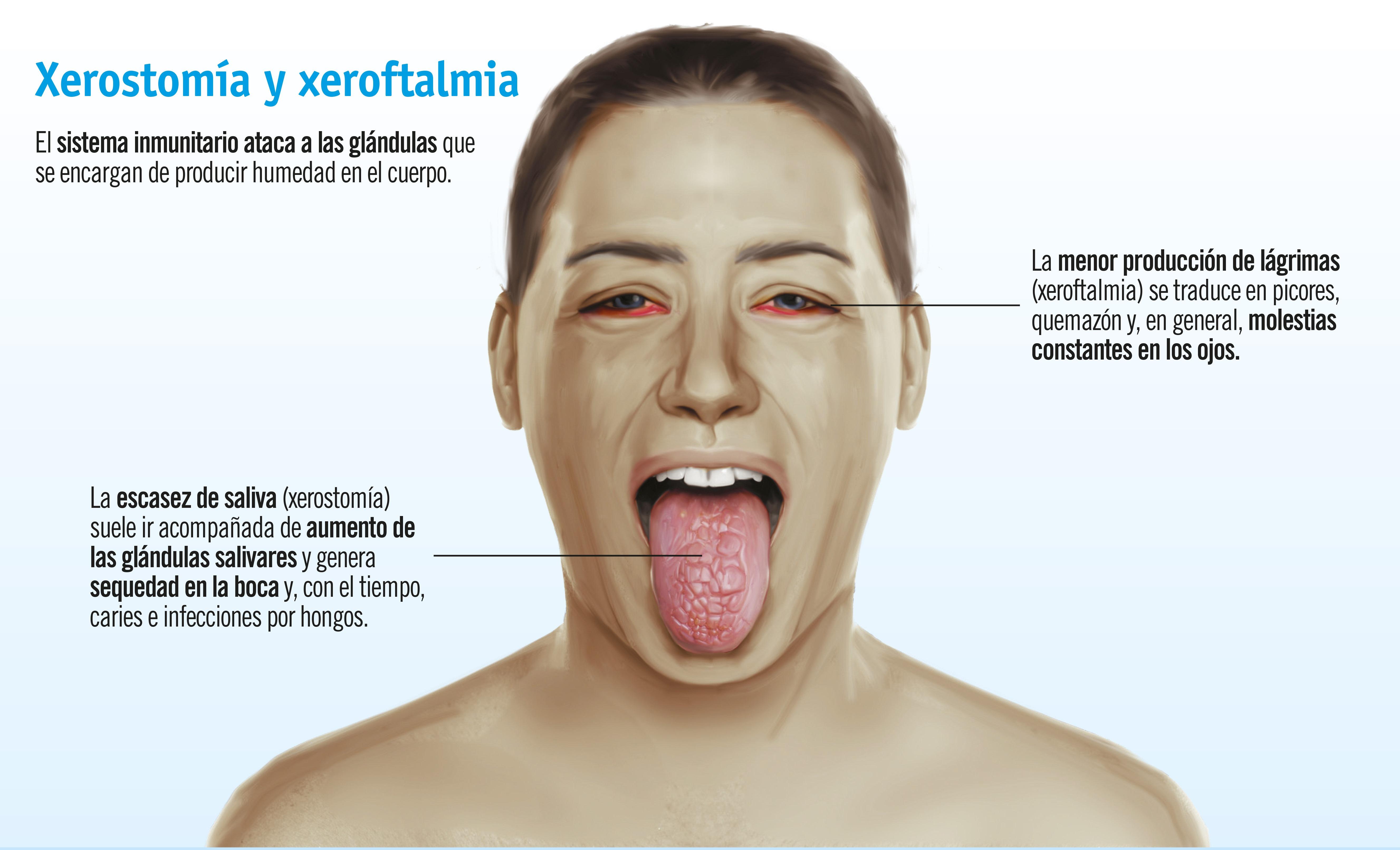 Síndrome de Sjögren: síntomas, diagnóstico y tratamiento