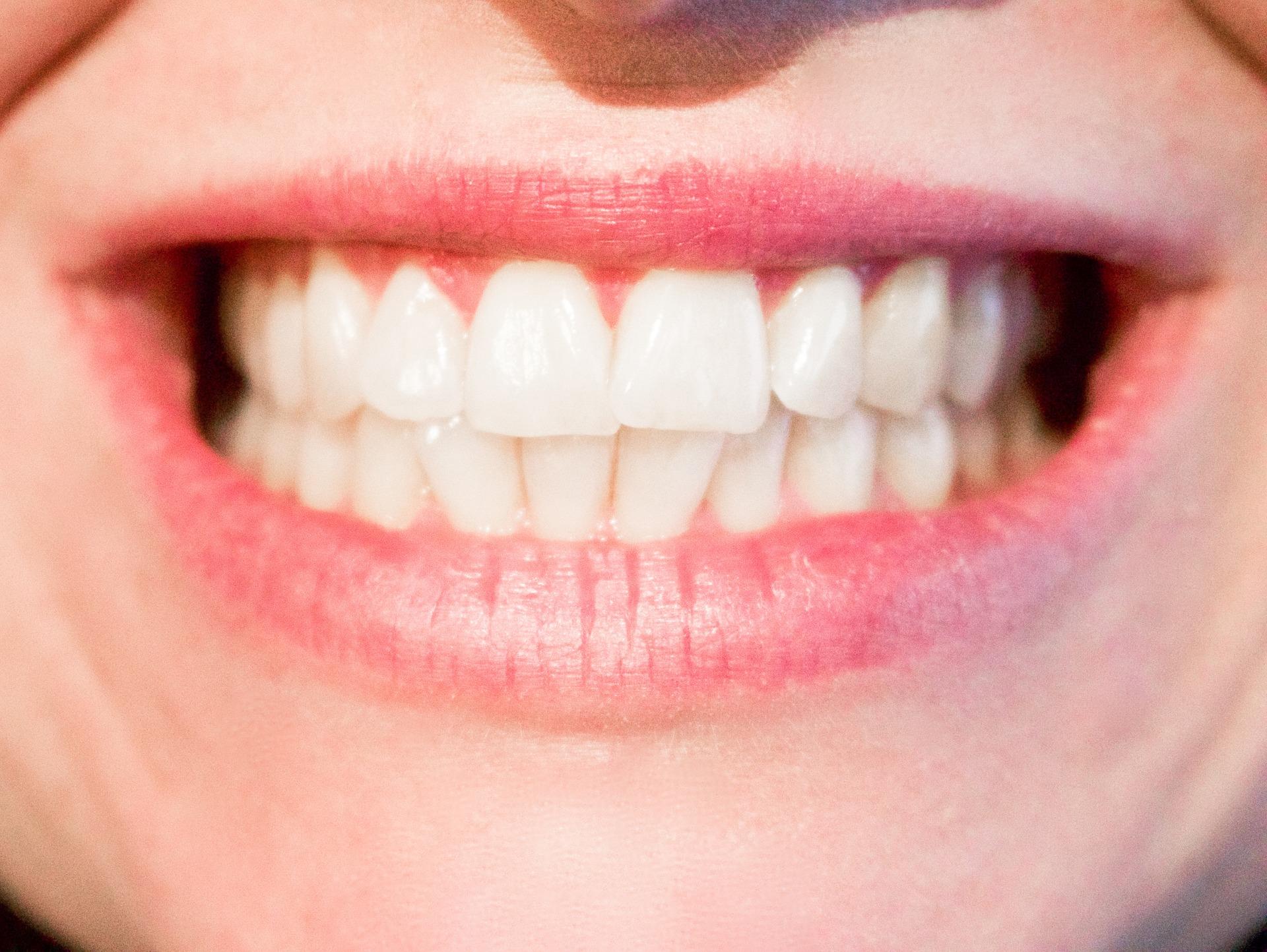 Ortodoncia: importancia de tener los dientes bien alineados