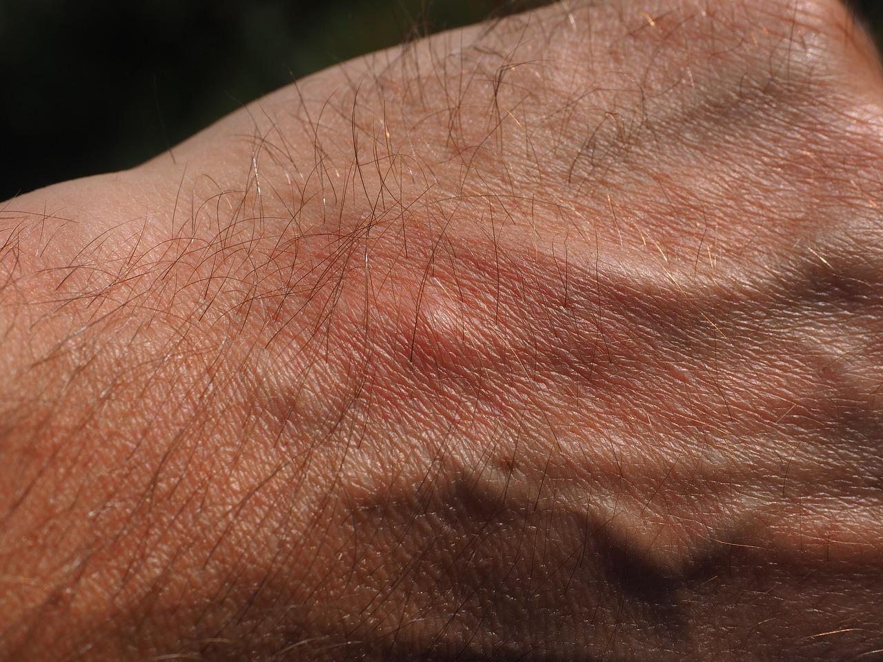 ¿Cuáles son los diferentes tipos de alergia y su tratamiento?