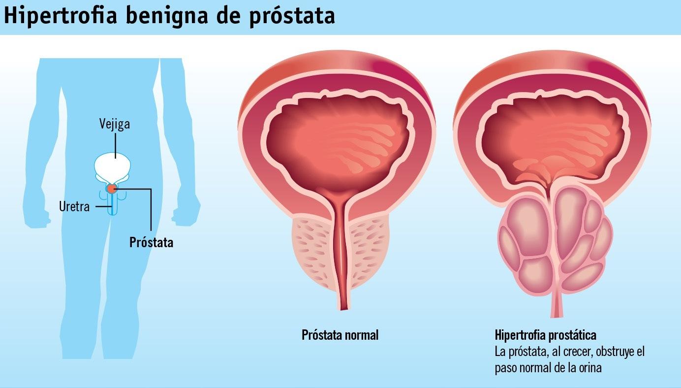 Láser contra los problemas de próstata