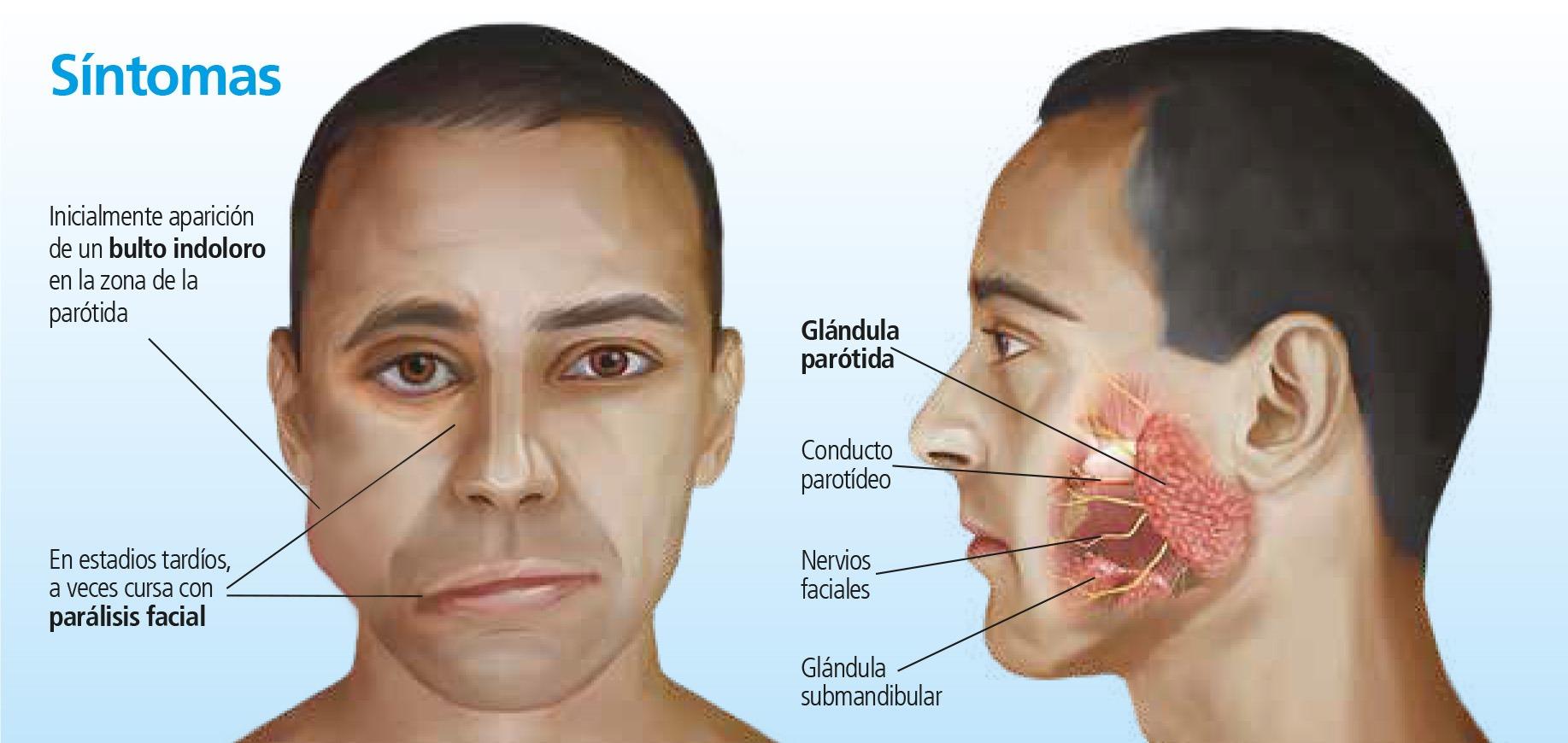 Tumor de parótida: poco frecuente y agresivo