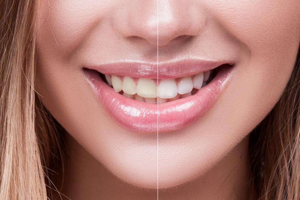 blanqueamiento dental procedimiento precio duracion